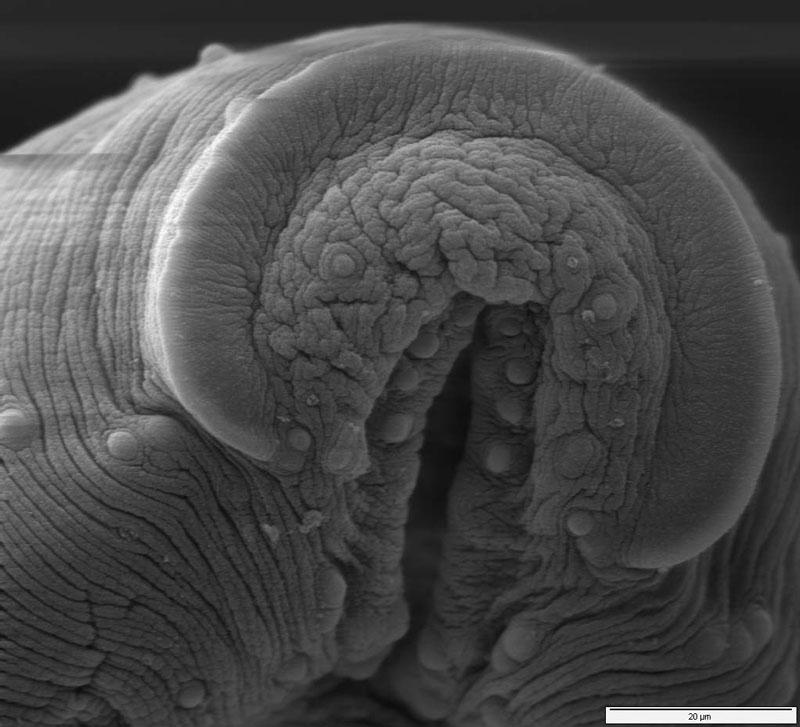 Гениталии Под Микроскопом Фото